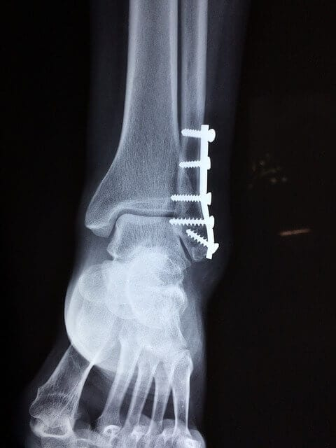 Ankle-Surgery