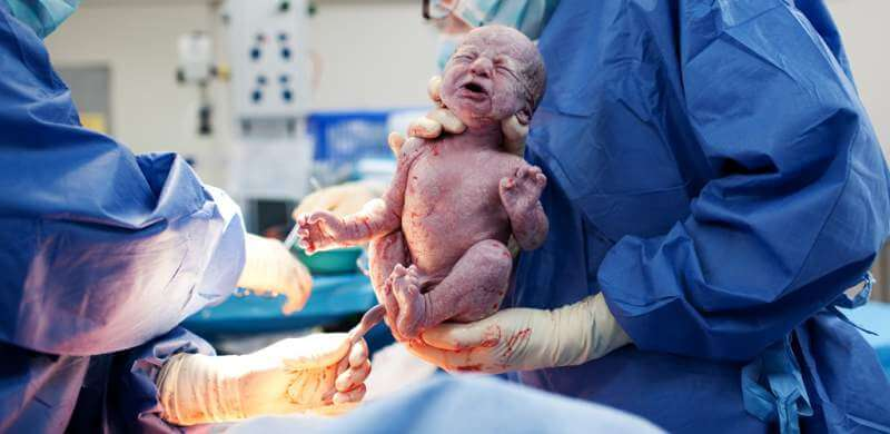 baby-being-born-via-caesarean-section