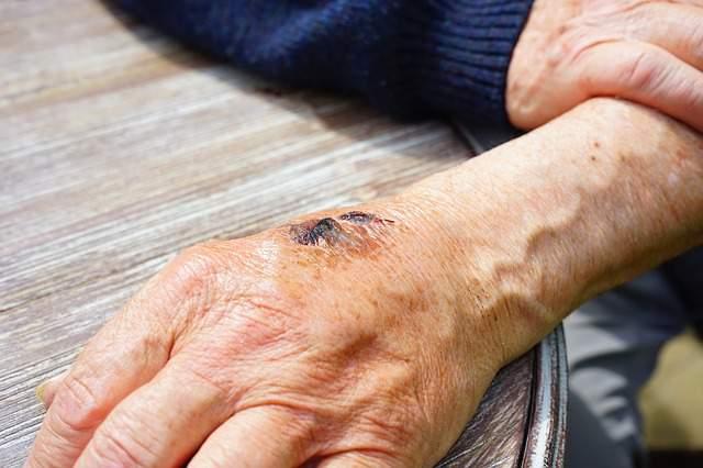 hand-injury-skin-abrasion-gall