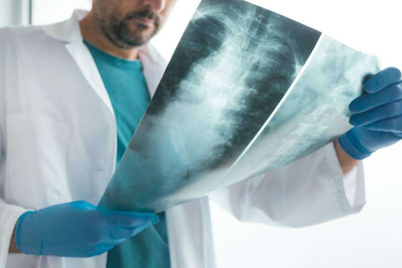 doctor-examining-x-ray-of-the-human-spine