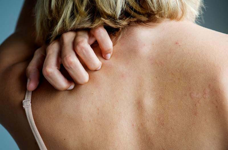 white-woman-back-pain-and-ache