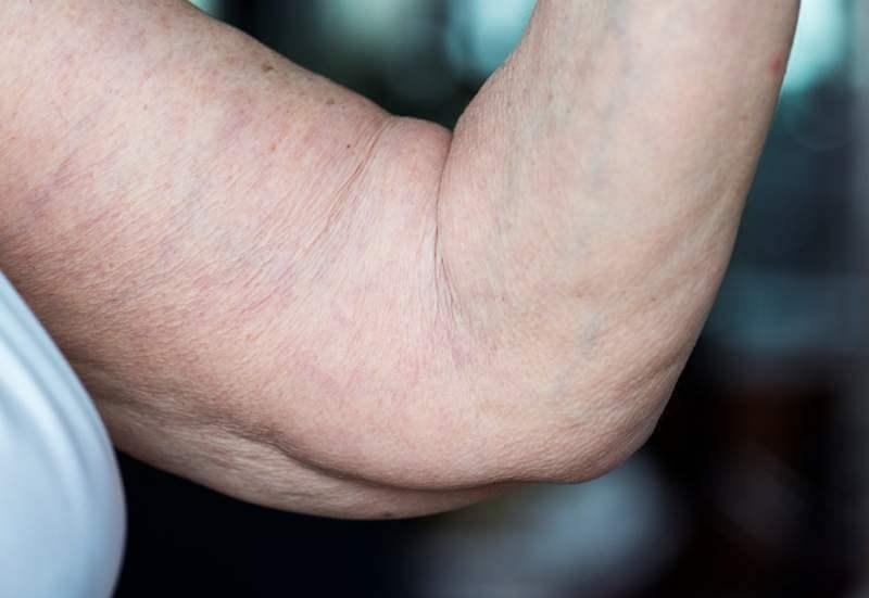 closeup-of-loose-elderly-arm