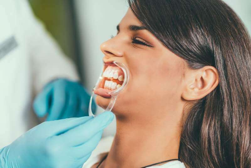 tooth-whitening-procedure