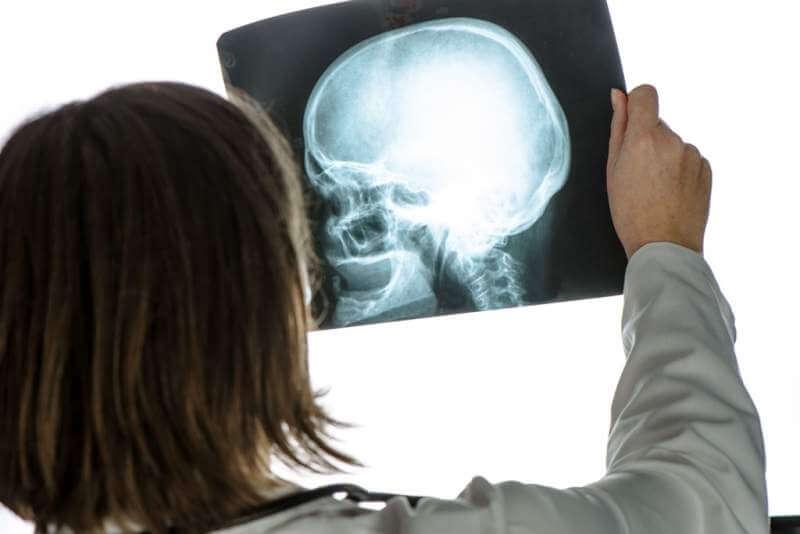 doctor-analyzing-human-skull-x-ray-screening