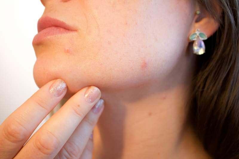 acne-women-face
