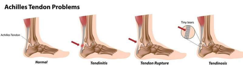 Achilles tendinitis problems