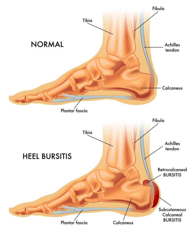 Heel bursitis-Normal