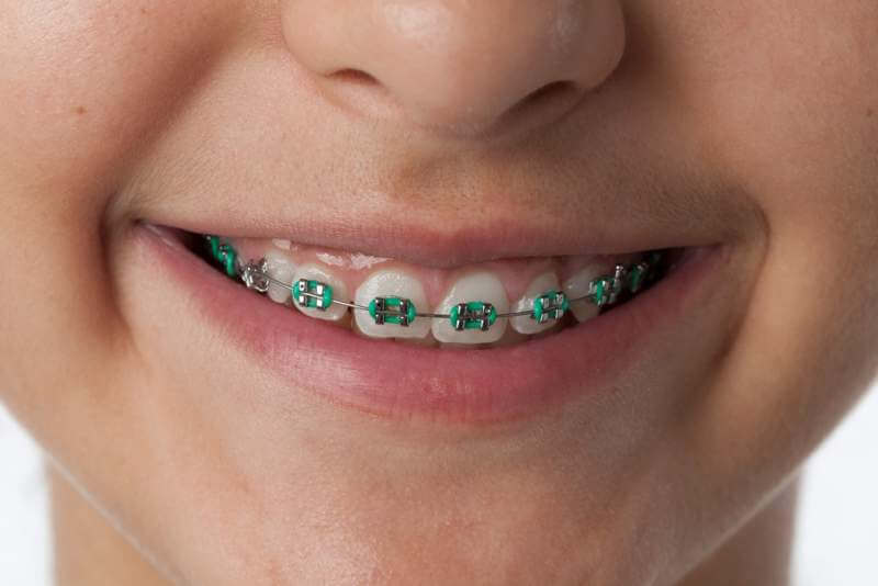 close-up-of-dental-braces-in-the-mouth