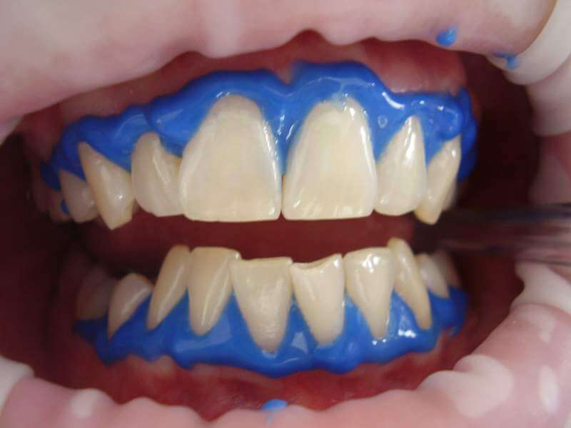 laser-teeth-whitening-dental